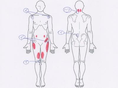 首の張り,肩の痛み,腰痛,股関節痛,膝の痛み