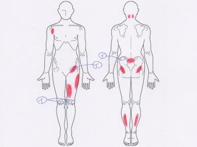 ぎっくり腰,腰痛,股関節,膝の痛み