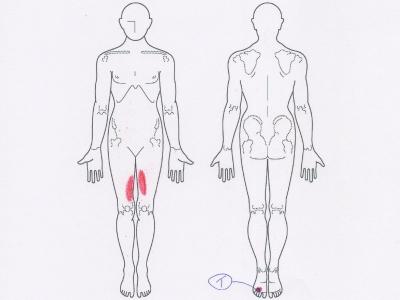 モートン病,足の痛み