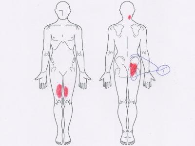 足の付け根の痛み,腰痛