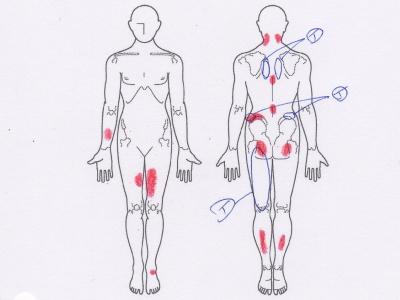 背中の痛み,腰痛,足の痛み