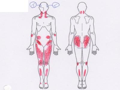 頭痛,原因不明の痛み