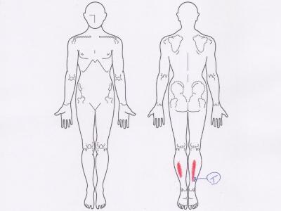 足の痛み,アキレス腱の痛み