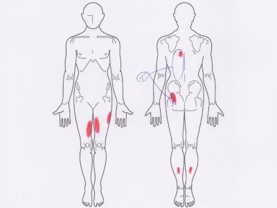 背中の痛み,腰痛,お尻の痛み