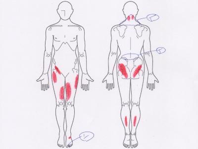 首の痛み,肩の痛み,腰痛,足のしびれ