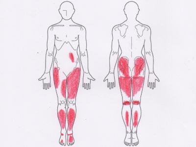 足の違和感,腰痛